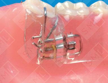 Molar Uprighting Partial U L Molar Movement Orthodontic
