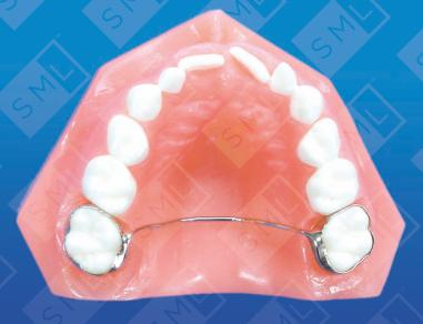 Transpalatal U Ram Retainer Orthodontic Tools Sml