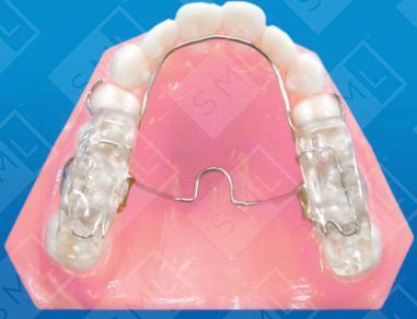 Fixed Twin Block Dental Appliance, Twin Block Dental