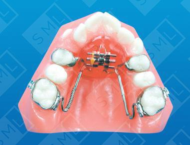 Modified Haas Expander Arch Development Orthodontic