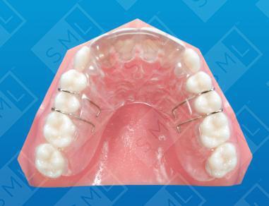 Oakes Splint U Teeth Grinding Prevention Orthodontic